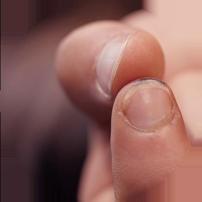 test de l'ongle sur un cuir